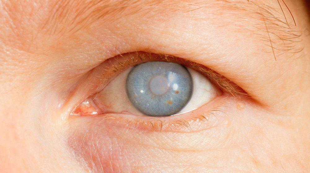 Best Eye Specialist in Pimple Saudagar
